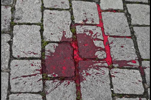 Πάτρα: Στο Νοσοκομείο άνδρας με σοβαρά τραύματα στο κεφάλι