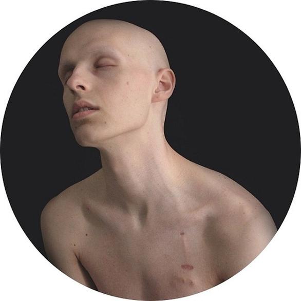 Ένας έφηβος κατέγραψε τη μάχη του με τον καρκίνο σε μια σειρά από σοκαριστικές φωτογραφίες (pics)