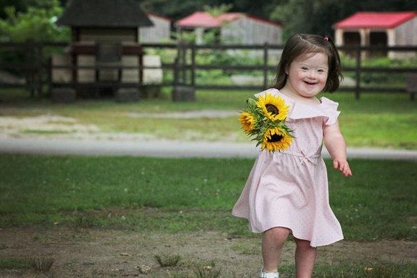 Παιδιά με σύνδρομο down σε πραγματικά χαρούμενες στιγμές (pics)