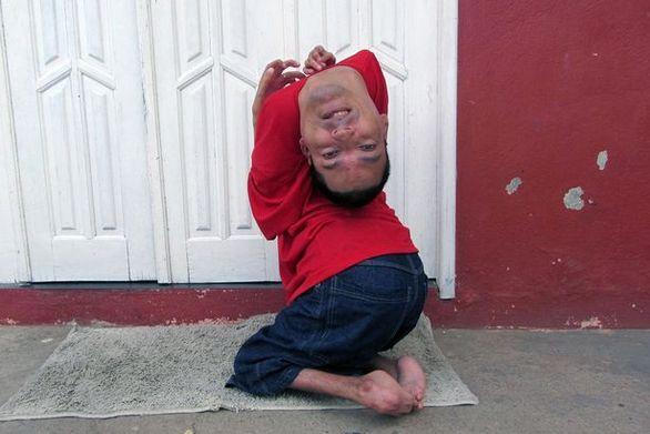Ο άνδρας που έχει γεννηθεί με το κεφάλι... ανάποδα (pics+video)