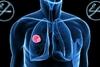 Πάτρα: Ενημερωτική εκδήλωση για τον καρκίνο του πνεύμονα