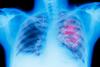 Πάτρα: Προληπτική εξέταση πολεμά τον καρκίνο του πνεύμονα