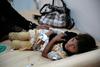 Η χολέρα στην Υεμένη έχει υποχωρήσει