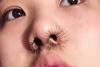 Κι όμως - Νεαρή προσπαθεί να κάνει μόδα τις… βλεφαρίδες στη μύτη!
