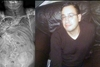 Έκκληση για βοήθεια στον 33χρονο Διονύση Προκόπη από τη Ζάκυνθο