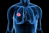 Κάθε χρόνο χάνεται πληθυσμός ίσος με τους κατοίκους της Ικαρίας από καρκίνο του πνεύμονα