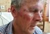 Ηλικιωμένος δέχθηκε επίθεση από Τούρκους στη Σάμο