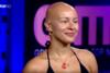 Λυδία Κατσανικάκη: 'Αντιμετώπισα άσχημες συμπεριφορές λόγω της αλωπεκίας'