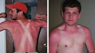 Αστείες περιπτώσεις καψίματος από τον ήλιο (video)