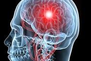 Οι δίγλωσσοι ανακάμπτουν καλύτερα μετά από ένα εγκεφαλικό