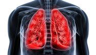 Πάτρα: Επιστημονική εκδήλωση για τα νεότερα δεδομένα στον Μη Μικροκυτταρικό Καρκίνο Πνεύμονα