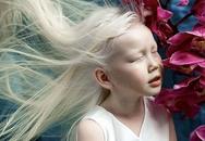 Η 8χρονη «Χιονάτη της Σιβηρίας» που έχει μαγέψει το χώρο της μόδας (pics)