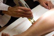 Ιατρικός Σύλλογος Πατρών - Ενημέρωση για χρήση υπηρεσιών αποτρίχωσης με μηχανήματα laser