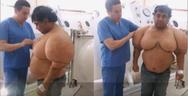 Ψαράς έπαθε την νόσο του δύτη και φούσκωσε σαν μπαλόνι (video)