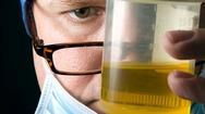 Δημιουργήθηκε το πρώτο τεστ ούρων για τη διάγνωση της φυματίωσης