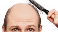 Επιστήμονες υποστηρίζουν πως βρήκαν τη θεραπεία για τη φαλάκρα