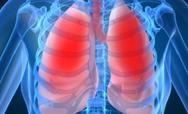 Γιατί δεν πρέπει να διακόπτουμε τη φαρμακευτική αγωγή για χρόνια αποφρακτική πνευμονοπάθεια
