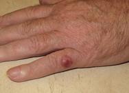 Καρκίνωμα… Μέρκελ: Ο καρκίνος του δέρματος που εξαπλώνεται γρήγορα