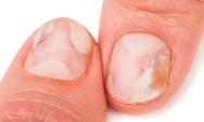Προσοχή στους μύκητες στα νύχια χεριών και ποδιών