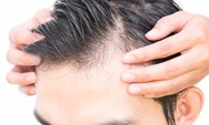 Φάρμακο σε πειραματικό στάδιο αναστρέφει την απώλεια μαλλιών