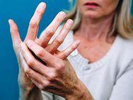Η έγκαιρη έναρξη θεραπείας για την Σκλήρυνση κατά Πλάκας μειώνει την εξέλιξή της