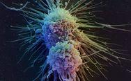 Φως στο γενετικό υπόβαθρο του καρκίνου του παχέος εντέρου