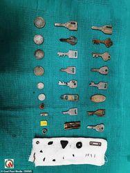 Ινδία - Γιατροί αφαίρεσαν 40 μεταλλικά αντικείμενα από το στομάχι ασθενούς (φωτο)