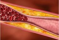 Πότε αρχίζουν να δρουν οι στατίνες στη μείωση της χοληστερίνης
