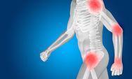 Ένα στάδιο πριν την οστεοπόρωση βρίσκεται σχεδόν το 30% ανδρών και γυναικών
