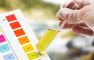 Τεστ ούρων μπορεί να διαγνώσει τον επιθετικό καρκίνο του προστάτη