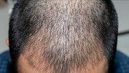 Τουρκία: Στο 1 δισ. ο τζίρος από τη μεταμόσχευση μαλλιών