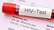 AIDS: Μειώθηκαν τα περιστατικά HIV λοίμωξης το πρώτο δεκάμηνο του 2019