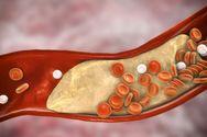 Οι αιτίες που προκαλούν υψηλή χοληστερίνη