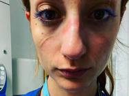Γιατρός που εργαζόταν στο ΠΓΝ Πατρών συγκλονίζει από το νοσοκομείο της Οξφόρδης