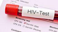 Βραζιλιάνος ασθενής ο πρώτος στον κόσμο που θεραπεύθηκε από τον ιό HIV