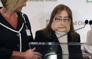 Πέθανε η πρώτη Αμερικανίδα που έκανε μεταμόσχευση προσώπου