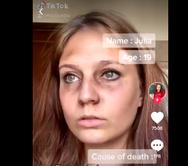 Σάλος με τάση στο Tik Tok: Χρήστες παριστάνουν τα θύματα του Ολοκαυτώματος
