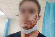 Μενίδι: Επιτέθηκαν σε αστυνομικούς επειδή πήγαν να σταματήσουν γλέντι