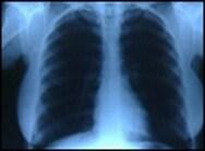 Οι πολλές ακτινογραφίες αυξάνουν τον κίνδυνο για καρκίνο των όρχεων