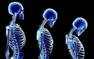 Οστεοπόρωση - Πότε αυξάνεται ο κίνδυνος για πρόωρο κάταγμα ισχίου