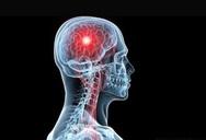 Εγκεφαλικό επεισόδιο: Το αμινοξύ που μειώνει τον κίνδυνο