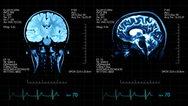 Αλτσχάιμερ: Πράσινο φως των ΗΠΑ στο πρώτο φάρμακο εδώ και 18 χρόνια