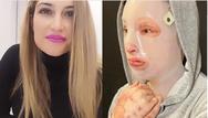 Ιωάννα Παλιοσπύρου ένα χρόνο μετά την επίθεση με το βιτριόλι: Προσπαθώ να αποδεχτώ την εικόνα μου