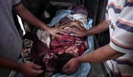 Πάτρα: Ο Ιατρικός Σύλλογος στο πλευρό του λαού της Παλαιστίνης