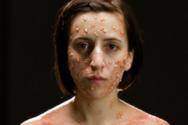 Δείτε πως φαίνονται 6 θανατηφόρες ασθένειες πάνω στο σώμα μας (video)