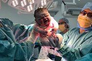 Νεογέννητο βάρους 6 κιλών