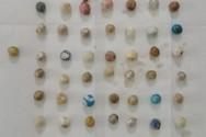 Πάτρα: Επιχείρησαν να μεταφέρουν ναρκωτικά στη φυλακή - Είχαν καταπιεί συνολικά 121 συσκευασίες