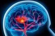 Αυξημένος ο κίνδυνος εμφράγματος, εγκεφαλικού και διαβήτη για όσους έζησαν σε εμπόλεμη ζώνη