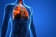 Αυξημένος ο κίνδυνος καρκίνου των πνευμόνων για τους ασθενείς με ΧΑΠ που ποτέ δεν κάπνισαν