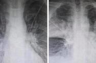 Κορωνοϊός - Ακτινογραφία δείχνει τη ραγδαία επιδείνωση στους πνεύμονες 38χρονου ασθενούς